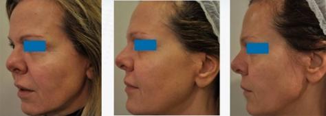 bio-modelage du visage